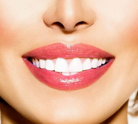 woman smiling after a Corner Mouth Lip Lift