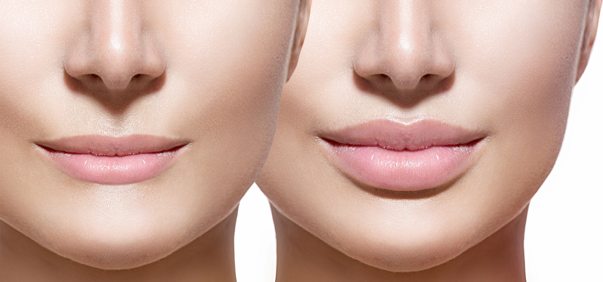 faces of two women after Lip Filler Treatment