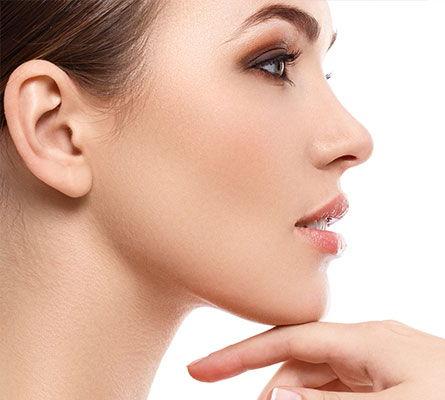 womans face after Upper Cheek Treatment
