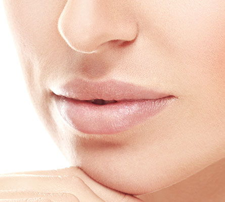 womans mouth after Mouth Lip Lines treatment