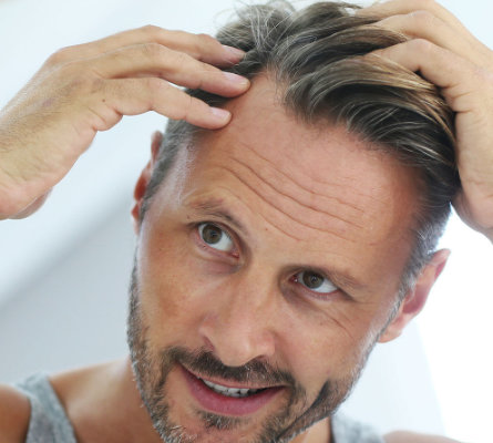 man checking his hair after a PRP Scalp Hair Growth Injection