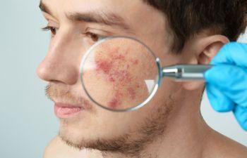 Acne Treatment Atlanta GA